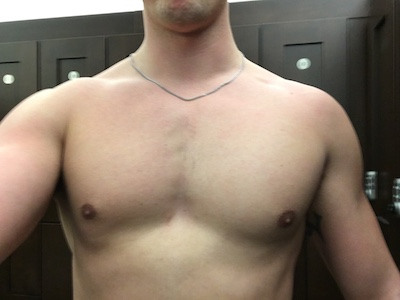 uneven muscle development chest before